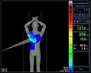 Image Caption: Enhancements to Toshiba's Dose Tracking System for the Infinix™ product line help clinicians track and measure peak skin dose and provide safer cardiovascular X-ray exams for patients.