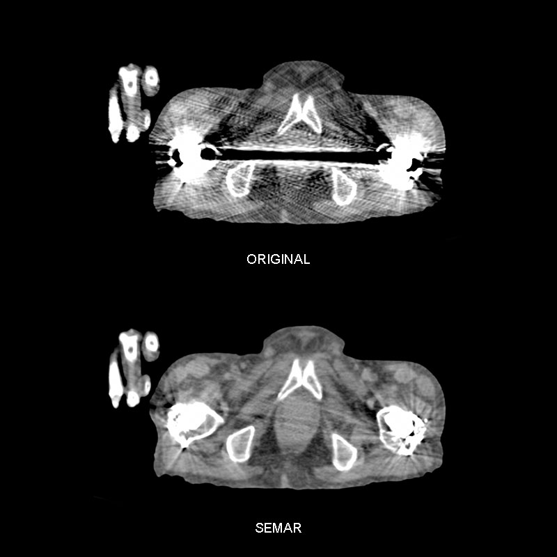 SEMAR, Skull to Mid-Thigh Scan