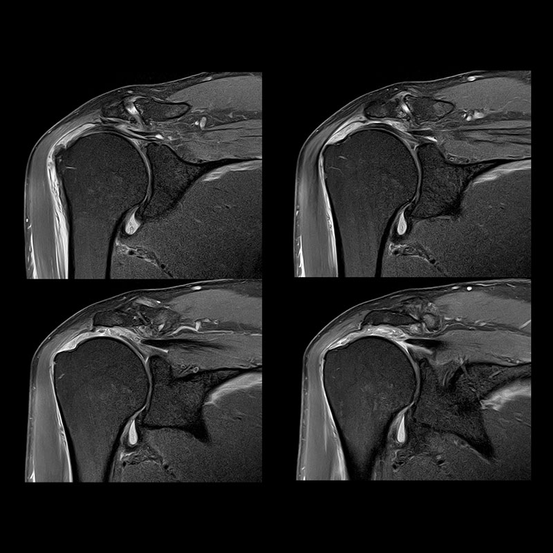 Orthopedic Upper Shoulder