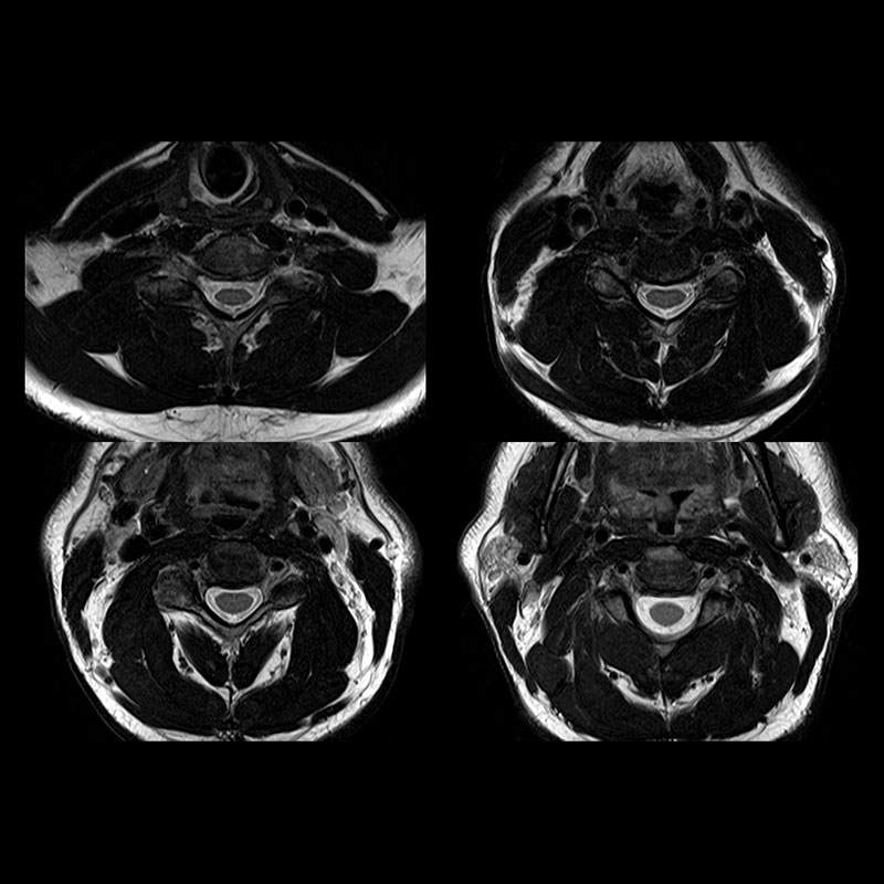 Spine | Vantage Galan 3T Clinical Gallery | Magnetic Resonance ...
