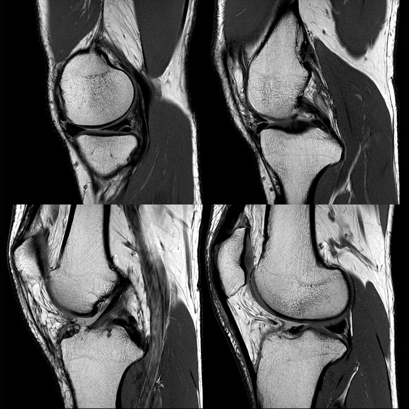 Orthopedic Lower Knee