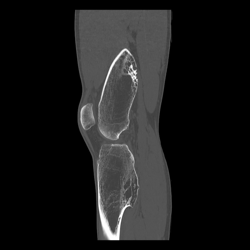 Musculoskeletal   Aquilion Precision Clinical Gallery