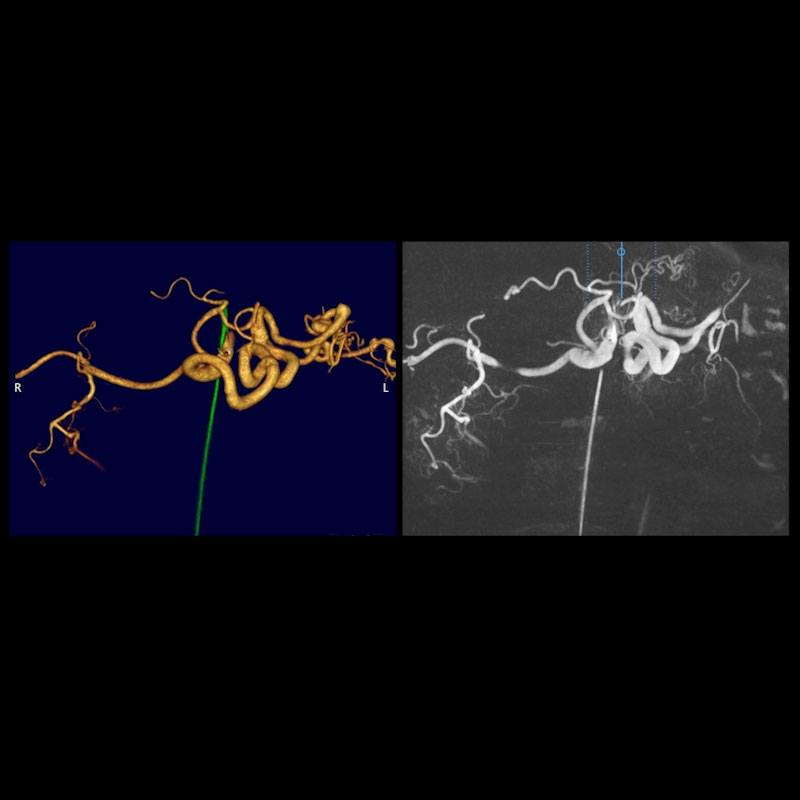 3D Digital Angiography (3D DA): Adult