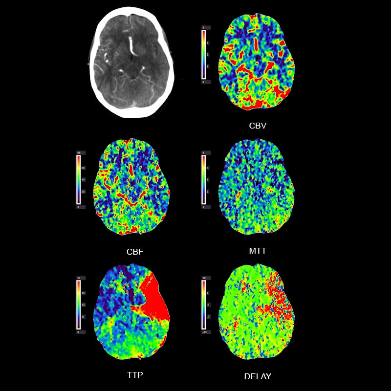 Brain Perfusion Left MCA Occlusion