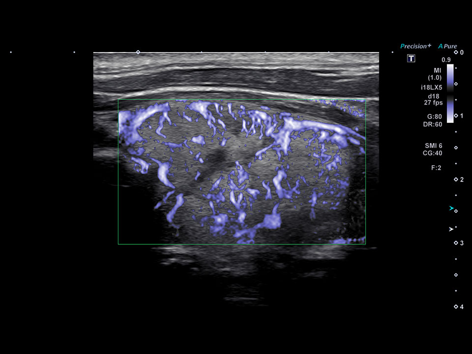 Thyroid Nodule cSMI