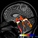 Advances in Neuro MRI: What's In Your Neuro Toolbox?