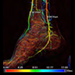 The Emerging Use of Parametric Imaging for Treatment of Critical Limb Ischemia