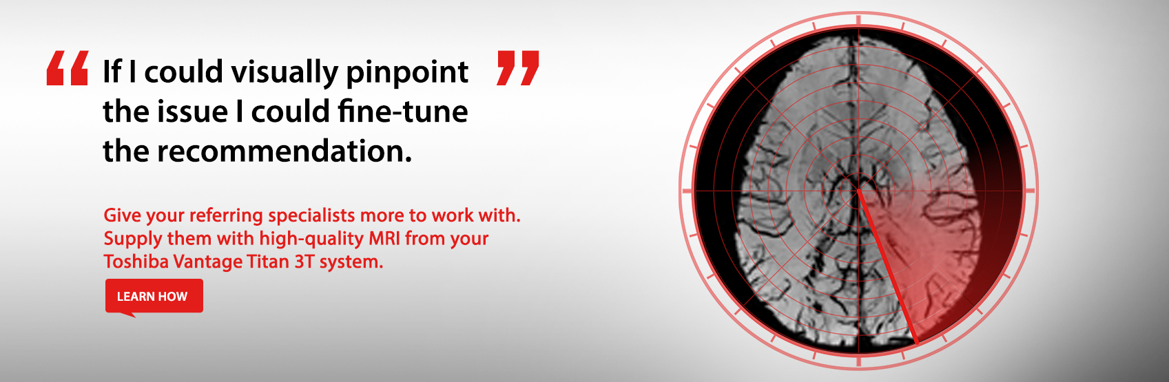 Give your referring specialists more to work with. Supply them with high-quality MRI from your Toshiba Vantage Titan 3T system. Learn More.