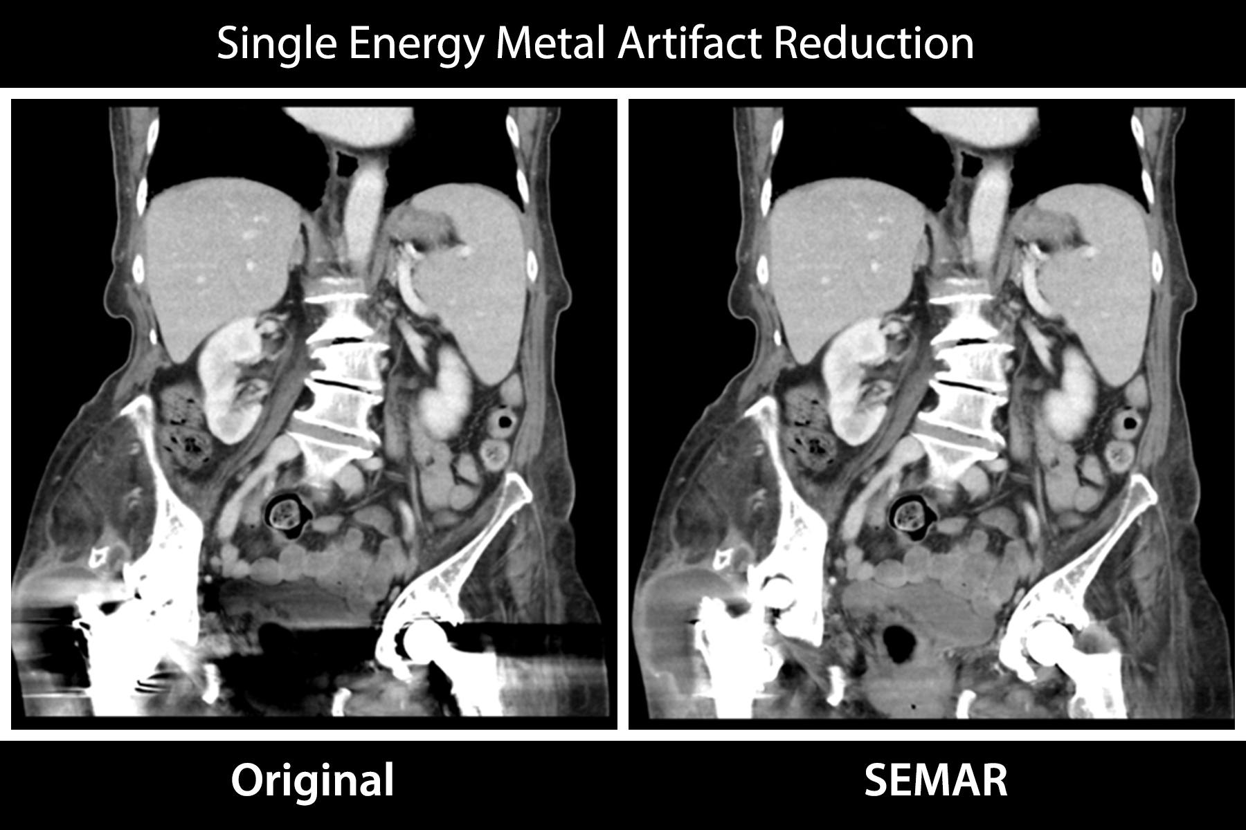Single Energy Metal Artifact Reduction (SEMAR)