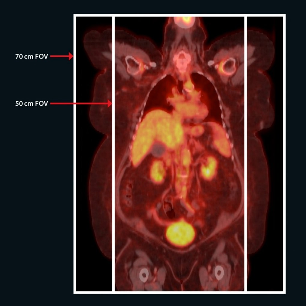 Celesteion PET/CT