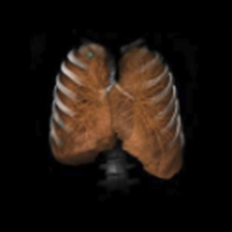 CT Expert Tools: Lung
