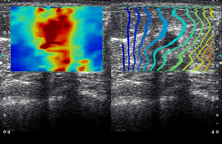 Elastography Suite