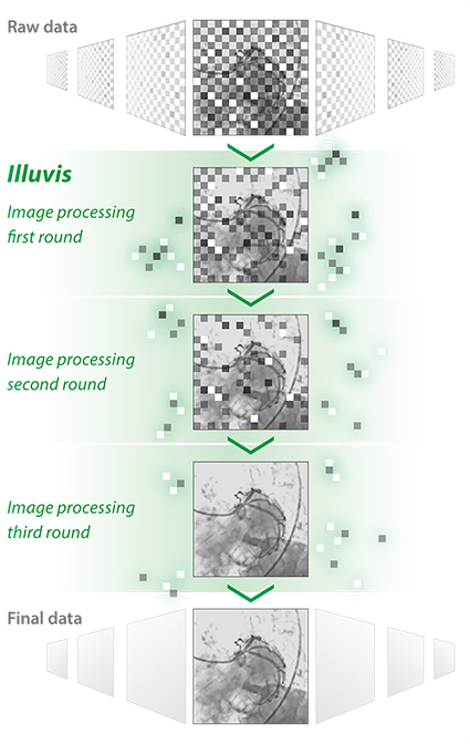 Illuvis noise reduction technology