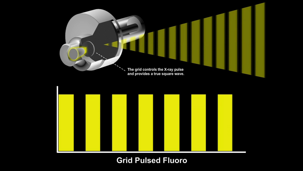 Grid Pulse Fluoroscopy