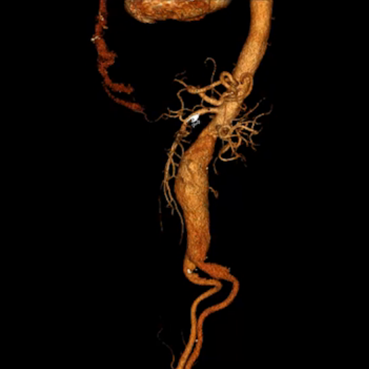 The aorta CTA one week after stenting of the descending thoracic ...
