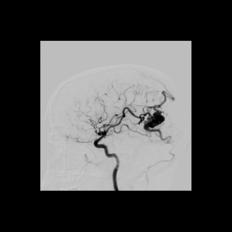 Neuro Angio