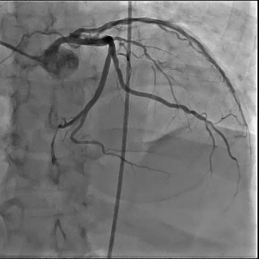 2D Coronary Angio