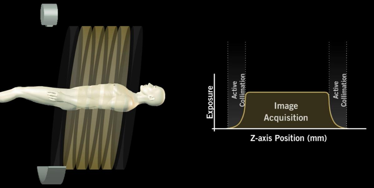 AIDR 3D Active Collimation