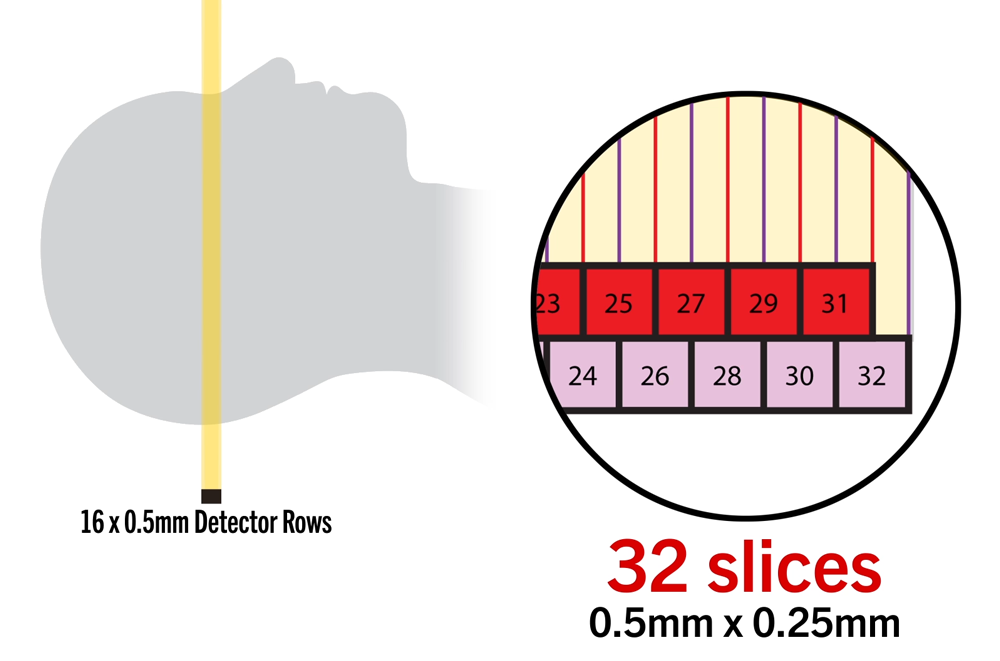 Aquilion LB Double Slice with coneXact