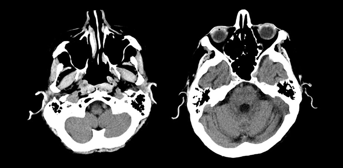 CT Clinical Images