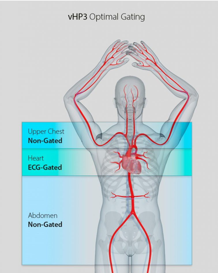 vHP3 ECG-Gated Scan