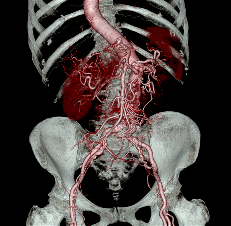 Abdominal CTA Aortic Aneurysm Clinical Image