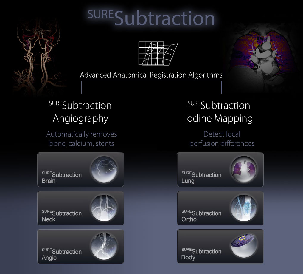 SURESubtraction CT Technology
