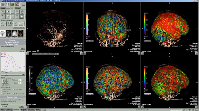 CT Brain Perfusion 4D