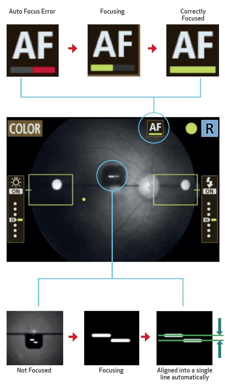 Auto-Focus with Manual Alignment Override