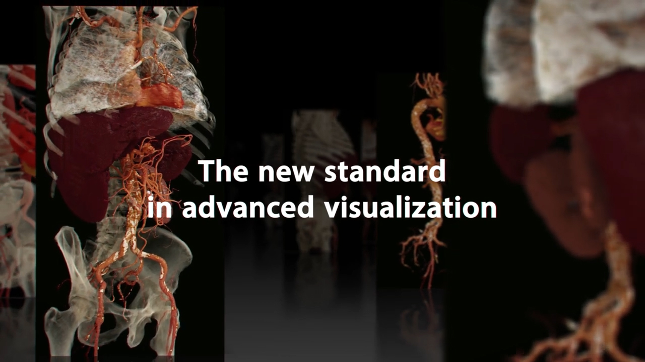 Global Illumination: The New Standard in Advanced Visualization
