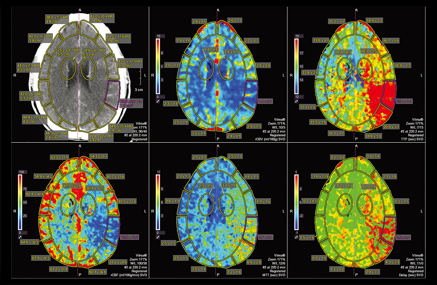 CT Brain Perfusion 2D