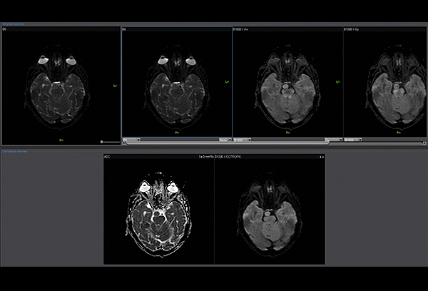 Diffusion Weighted Imaging (DWI)