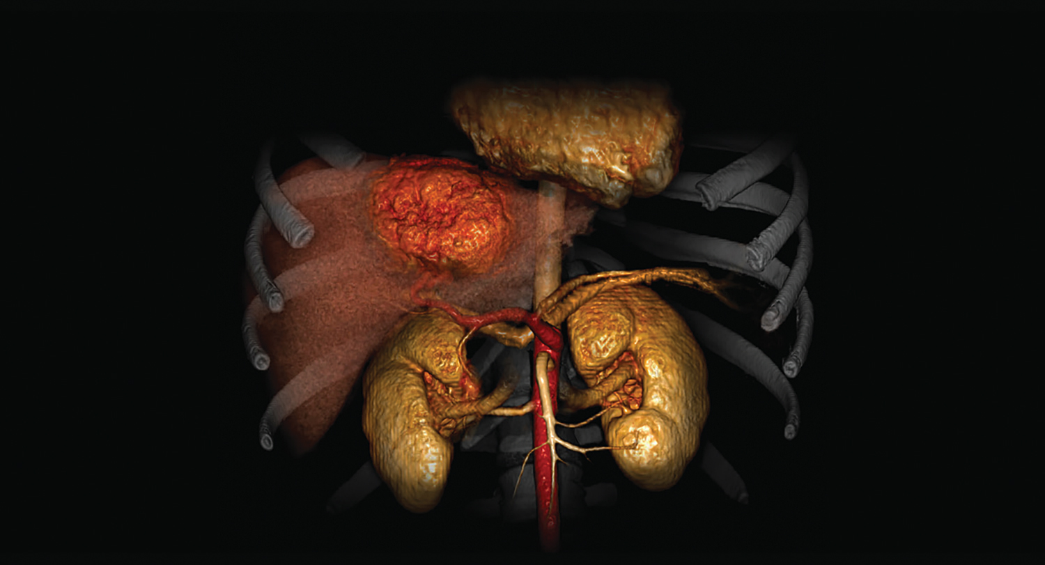 CT Liver Analysis