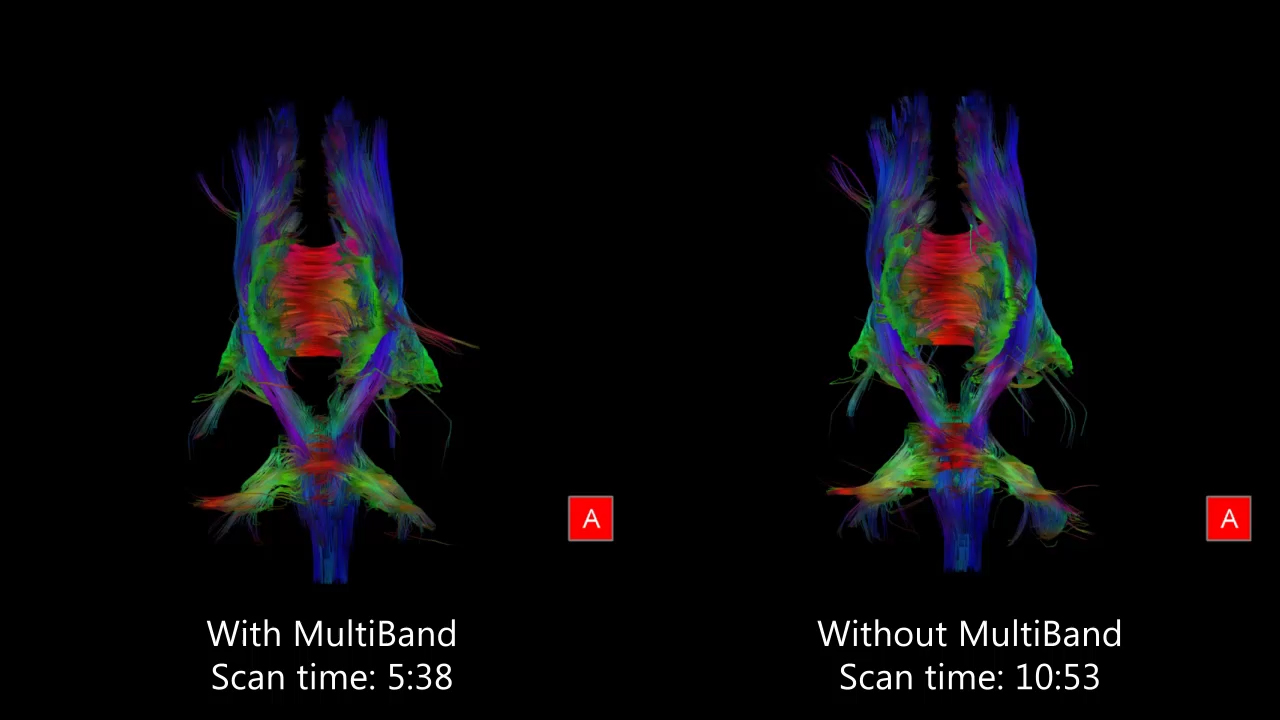 48-Direction Diffusion Tensor Imaging<