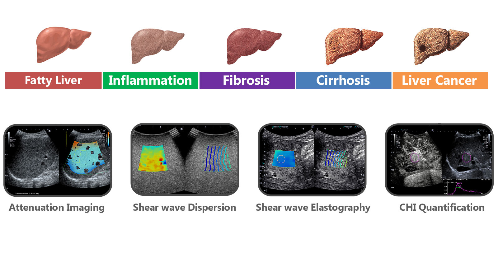 i-series Liver Analysis