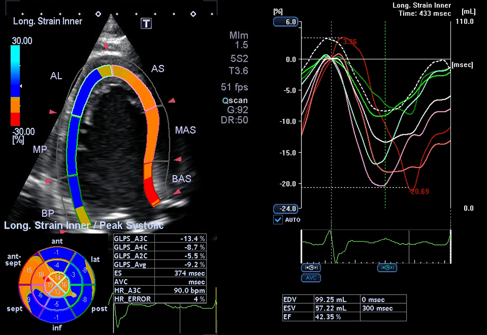 Cardiac Wall Motion Tracking, Ultrasound