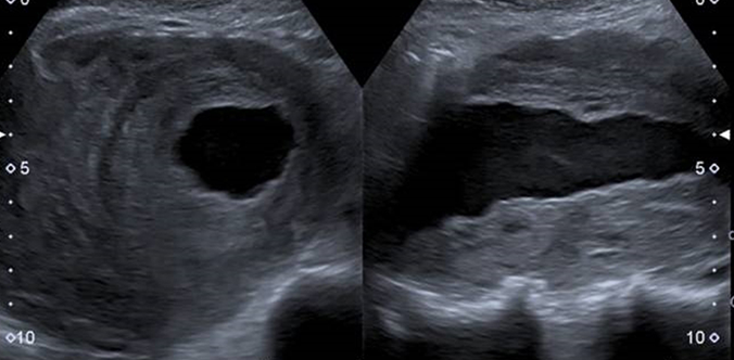 Advanced Ultrasound Applications