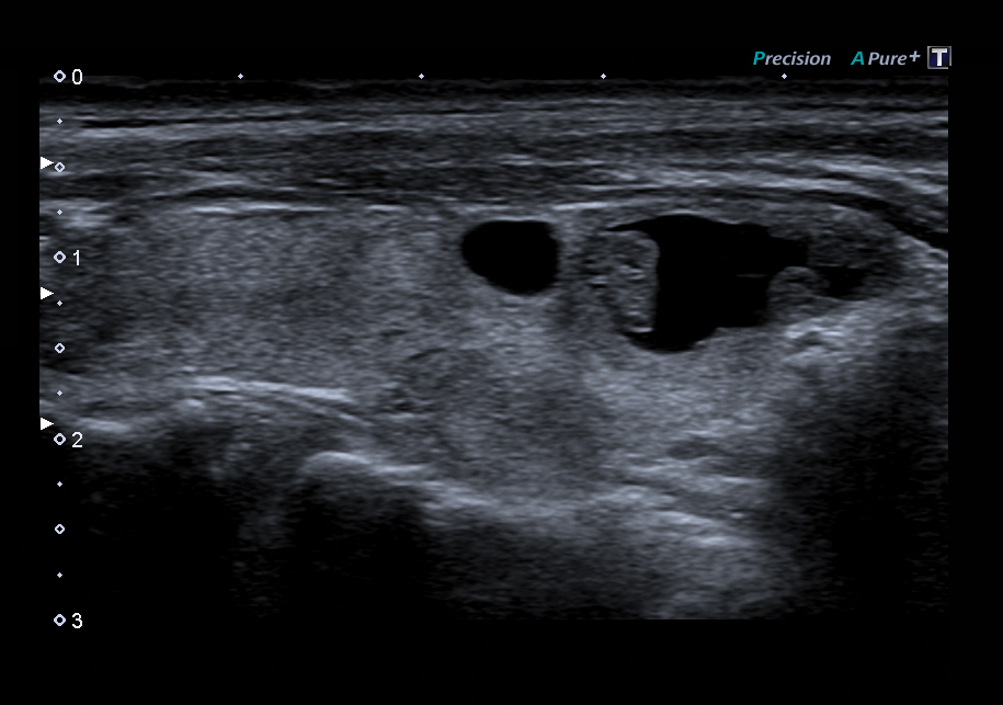 Ultrasound Precision Imaging