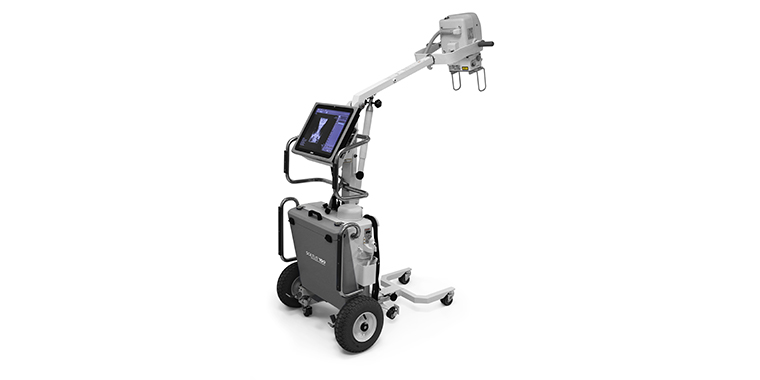 Soltus 100 Mobile Digital X-Ray System