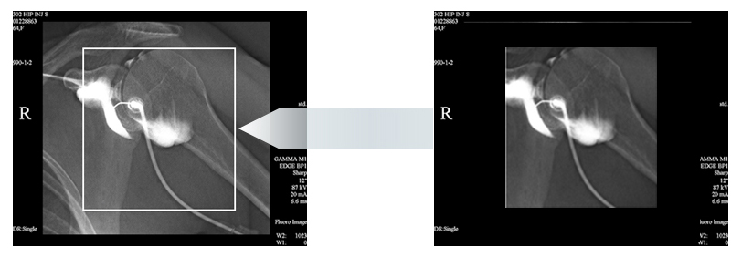 Last Image Hold & Virtual Collimation